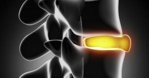 Risk Factors for Spinal Degeneration